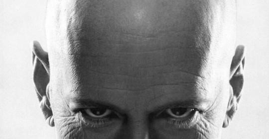 Alopecia androgenetica maschile dopo i 40 anni.