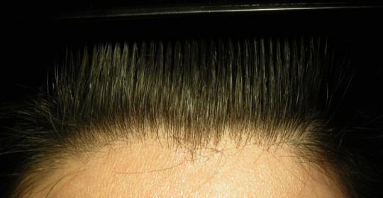 Alopecia androgenetica dai 20 ai 30 anni.